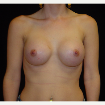 25-34 year old woman treated with Breast Augmentation after 3808913