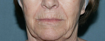 Wrinkle Reduction with Laser Resurfacing before 1064651