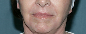 Wrinkle Reduction with Laser Resurfacing after 1064651