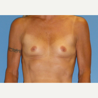 45-54 year old woman treated with Breast Augmentation before 3698248