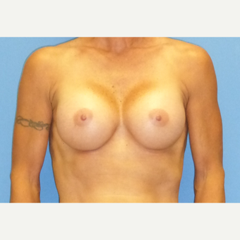 45-54 year old woman treated with Breast Augmentation after 3698248