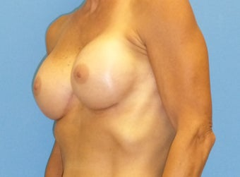 45-54 year old woman treated with Breast Augmentation 3698248