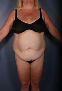 After Weight Loss, Liposuction, Tummy Tuck before 1394280