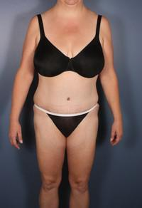 After Weight Loss, Liposuction, Tummy Tuck after 1394280