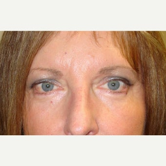 44 year old woman treated with Chemical Peel after 1634916