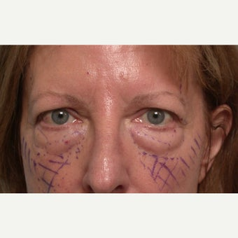44 year old woman treated with Chemical Peel before 1634916