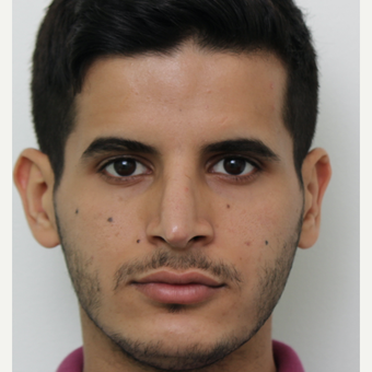 25-34 year old man treated with Revision Rhinoplasty after 3583846