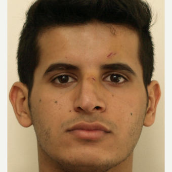 25-34 year old man treated with Revision Rhinoplasty before 3583846