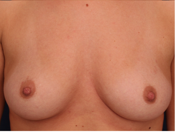 18-24 year old woman treated with Nipple Surgery after 3705899