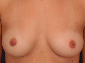 18-24 year old woman treated with Nipple Surgery before 3705899