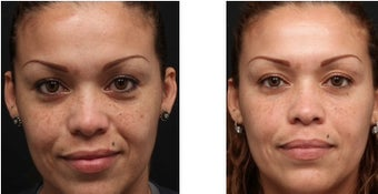 Chemical peel for improved texture and pigmentation.  before 1088344