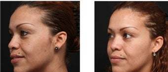 Chemical peel for improved texture and pigmentation.  1088344