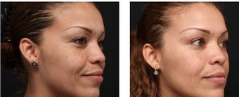Chemical peel for improved texture and pigmentation.  after 1088344