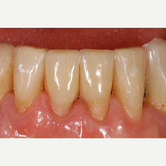 65-74 year old woman treated with ceramic dental crowns on two lower incisors after 3550922