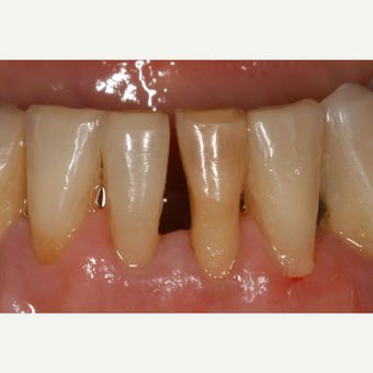 65-74 year old woman treated with ceramic dental crowns on two lower incisors before 3550922