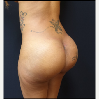 25-34 year old woman treated with Fat Transfer and 712cc Butt Implants after 3129312