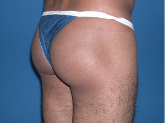 Male Butt Augmentation after 398796