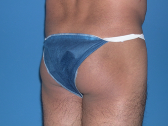 Male Butt Augmentation before 398796