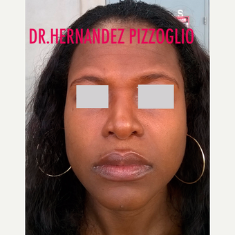 35-44 year old woman treated with Rhinoplasty after 3659278