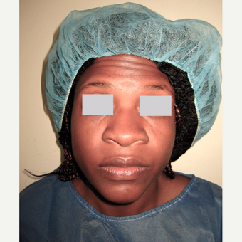 35-44 year old woman treated with Rhinoplasty before 3659278