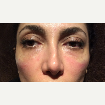 35-44 year old woman treated with Restylane after 3460579