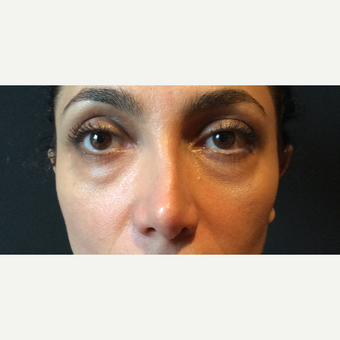 35-44 year old woman treated with Restylane before 3460579
