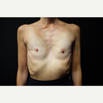 45-54 year old woman treated with Breast Augmentation before 3753931