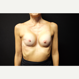 45-54 year old woman treated with Breast Augmentation after 3753931