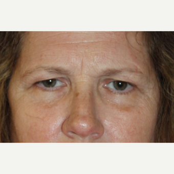45-54 year old woman treated with Brow Lift for heavy lids before 3410845