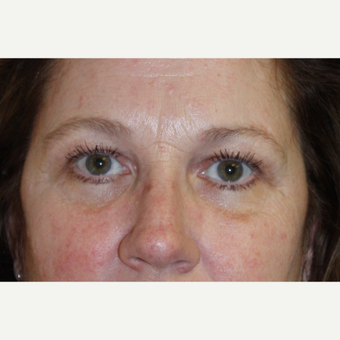 45-54 year old woman treated with Brow Lift for heavy lids after 3410845