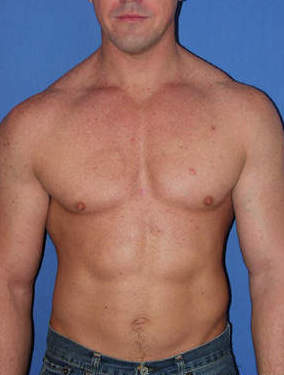 Male Pectoral Implants before 1412152
