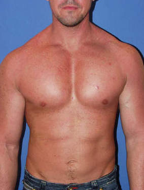 Male Pectoral Implants after 1412152