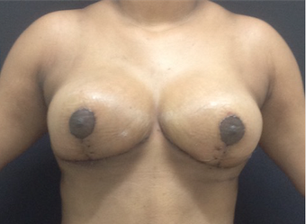 Breast lift without Implants 5 days post-op after 1263263
