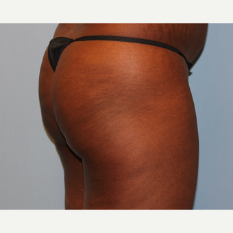 45-54 year old woman treated with Brazilian Butt Lift before 3808991