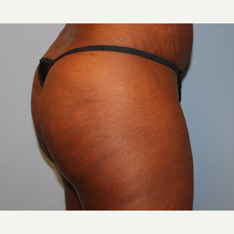 45-54 year old woman treated with Brazilian Butt Lift after 3808991