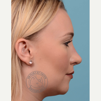 25-34 year old woman treated with open Rhinoplasty/septoplasty after 3092541
