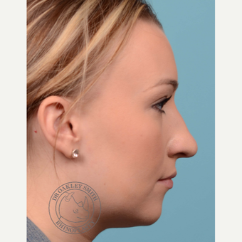 25-34 year old woman treated with open Rhinoplasty/septoplasty before 3092541