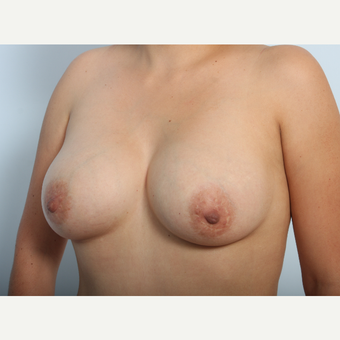 Breast Augmentation after 3340048