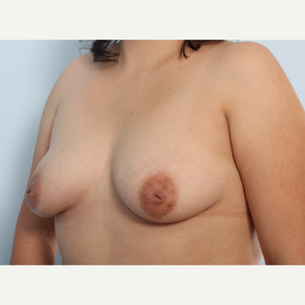 Breast Augmentation before 3340048