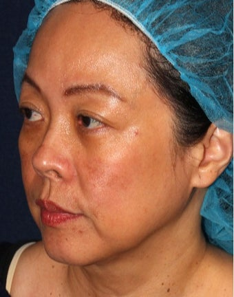 35-44 year old woman treated with Laser Treatment after 3623966