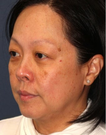 35-44 year old woman treated with Laser Treatment before 3623966