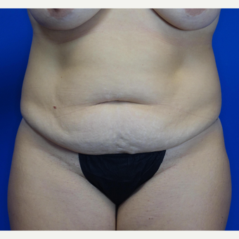 35-44 year old woman treated with Tummy Tuck before 3769530
