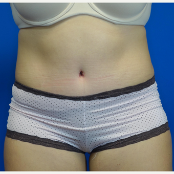 35-44 year old woman treated with Tummy Tuck after 3769530