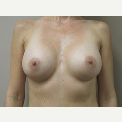 Breast Implants after 3373622