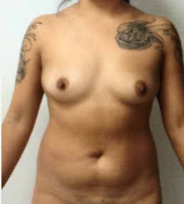 18-24 year old woman treated with Breast Augmentation before 3103176