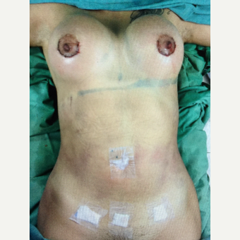 18-24 year old woman treated with Breast Augmentation after 3103176