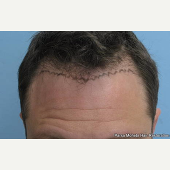 FUE Hair Transplant on Class III-V Patient by Dr. Parsa Mohebi before 3618553