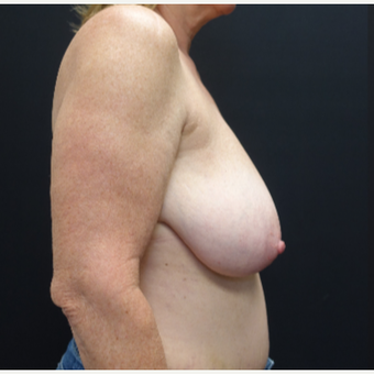 55-64 year old woman treated with Breast Lift before 3130107