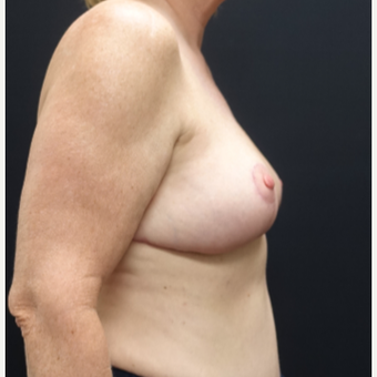 55-64 year old woman treated with Breast Lift after 3130107