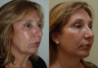 Neck Lift before 223588